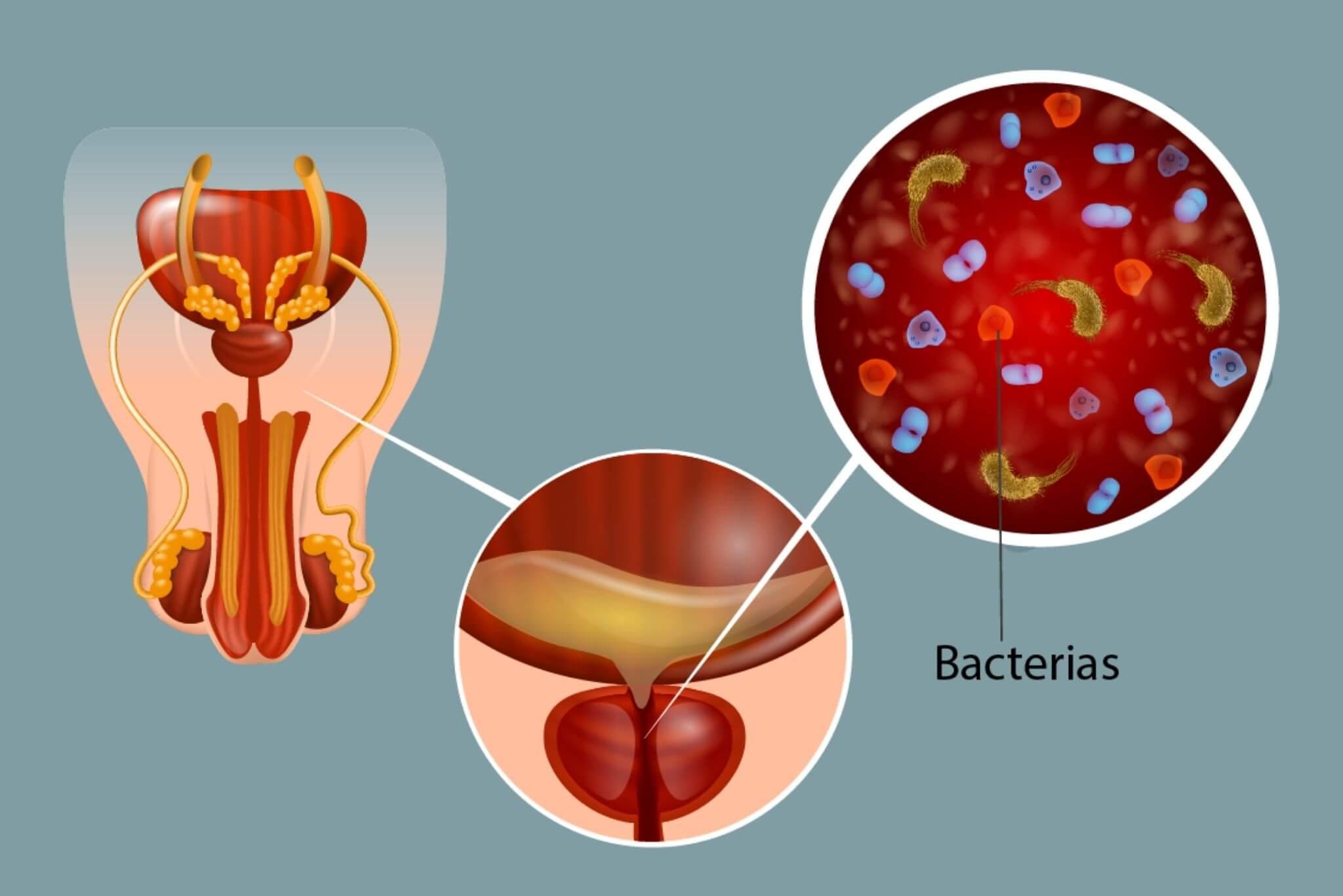 Prostatitis és vese